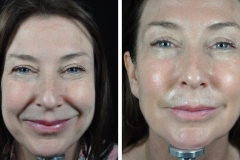 profhilo-beauty-jab-sharon-front-before-and-after-main