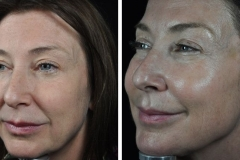 profhilo-beauty-jab-sharon-side-before-and-after